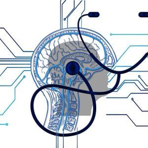 脳の中でなにかが起きている