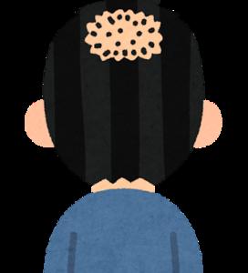AGA卒薬206日目(服薬1502日)薄毛が気になり出したのは何がきっかけですか?