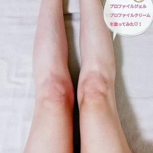 私の脚痩せ実験記♡
