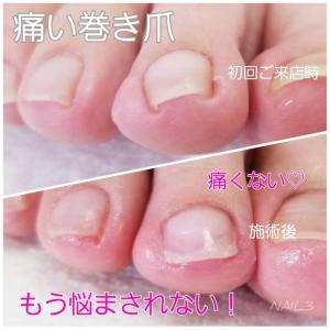 人差し指の巻き爪☆親指以外の爪トラブルもお任せください!