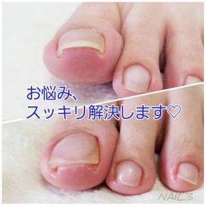 初回ご来店時、お帰りの際にはこの変化!爪にまつわるお悩みは、お気軽にご相談ください。