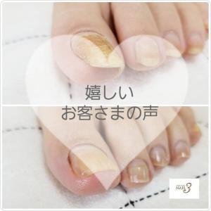 【お客さまの声】巻き爪・トラブル爪☆施術を受けられたお客さまのご感想♡
