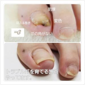 ネイルサロンで出来ること★トラブル爪を健康的な自爪に育てる施術!