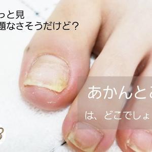 爪の角・爪のはしが、痛くなったり化膿したりする人の原因は〇〇〇!