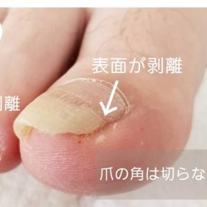 足の爪、角を切っている人必見!!爪の角は本来あるべき部分です。