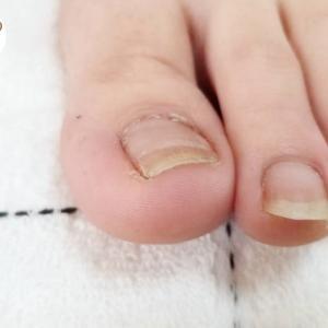 爪がぐんぐんのびても痛くない♪陥入爪・深爪の育て方。