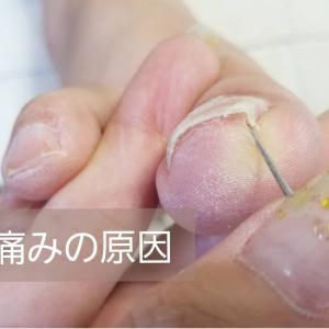 【巻き爪】ネイルサロンで出来る巻き爪ケア