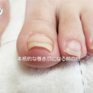 【巻き爪予備軍】「本格的な巻き爪になる前の爪」への対応策!