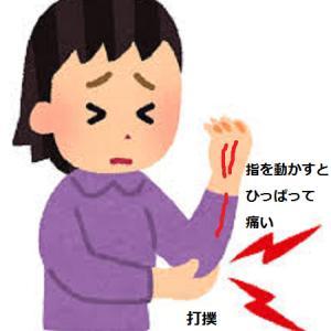 肘を打撲してから指を動かすと痛い 女性
