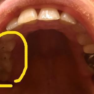 銀歯からセラミックへ ④ 右上2回目