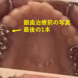 銀歯からセラミックへ⑧左上最後の1本