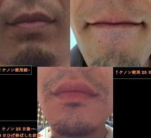ひげ脱毛途中経過(25日後)