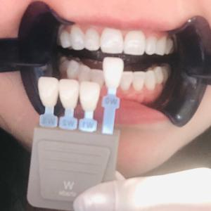 あなたの歯の色はどんな色?@オフィスホワイトニング