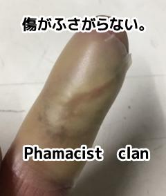 指の傷ぱっくり割れて傷がくっついてないじゃん!