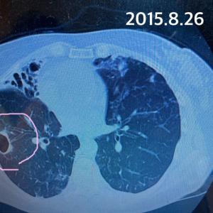 非結核性抗酸菌症(肺MAC・アブセッサス)診察日 CT比較