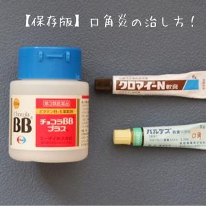 【保存版】私の「口角炎」の治し方