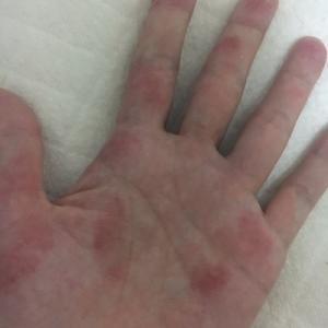 《湿疹・アトピー》息子の湿疹とわたしの手荒れはこれが原因かも?