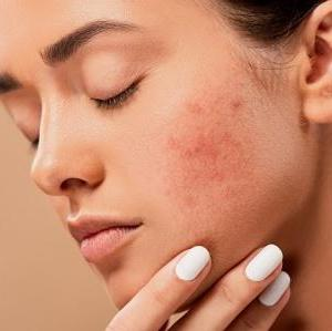 肌トラブルの記録。保湿剤のみでは追いつかず、ステロイドを使用することになった。