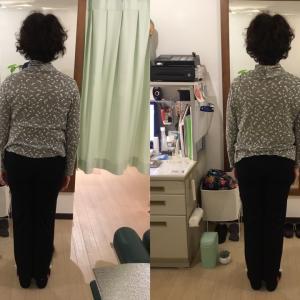 50代女性 腰痛、打ち身の症状で来院