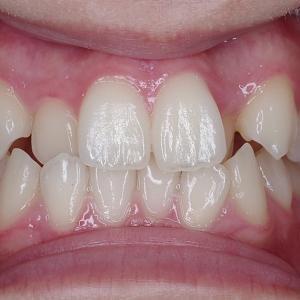 上顎のみ全体矯正症例① 白石区在住10代女性