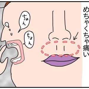 歯の矯正③