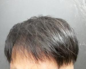 てっぺんハゲが進行中。韓国で自毛植毛して3年と半年後の経過画像を公開