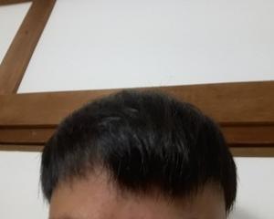 新型コロナウィルスの影響で薄毛は進行するのか?