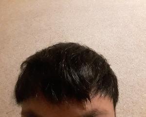 韓国Moten(モテン)で自毛植毛して3年半1週間後の経過画像を公開