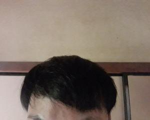 韓国で自毛植毛して3年半と2週間後の経過画像を公開