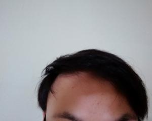 玉ねぎ育毛1ヶ月半後の経過画像を公開します