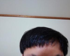 韓国のMOTEN(モテン)で自毛植毛して3年2ヶ月4週間後の経過画像を公開