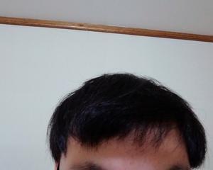 玉ねぎ育毛2ヶ月後の経過写真を公開。赤玉ねぎの方が育毛効果が高いという噂
