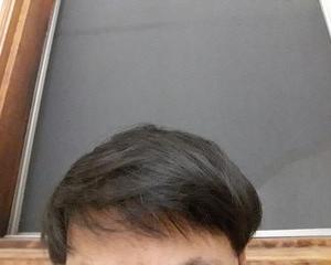 玉ねぎ育毛2ヶ月2週間後の経過写真を公開。玉ねぎで発毛チャレンジ