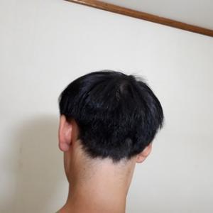自毛植毛三年後の後頭部の採取部の状態を写真で公開します