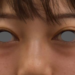 目の下のクマの治療(若い方バージョン)