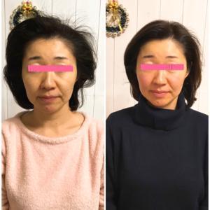 まぶたが軽く集中力復活する小顔&頭蓋骨矯正