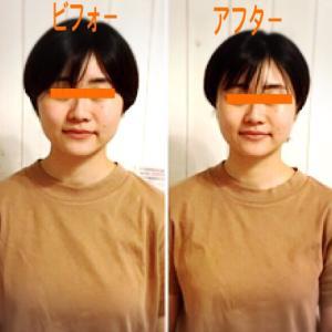 ガチガチのコリも根本改善する頭蓋骨小顔矯正