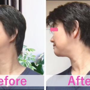 酷使した首のコリや歪みが改善するセルフケア