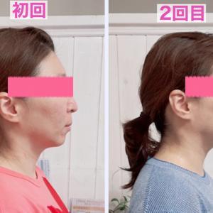 左右歪み整いワクチンデトックスもできる頭蓋骨小顔