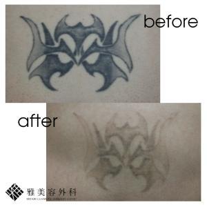 ピコレーザーによるタトゥー除去、症例55<大阪雅美容外科>