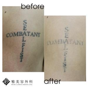 ピコレーザーによるタトゥー除去、症例63<大阪雅美容外科>