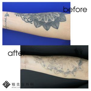 ピコレーザーによるタトゥー除去、症例68<大阪雅美容外科>