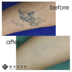 ピコレーザーによるタトゥー除去、症例70<大阪雅美容外科>