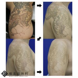 ピコレーザーによるタトゥー除去、症例74<大阪雅美容外科>