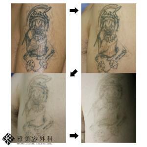 ピコレーザーによるタトゥー除去、症例78<大阪雅美容外科>