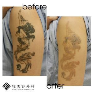 ピコレーザーによるタトゥー除去、症例83<大阪雅美容外科>