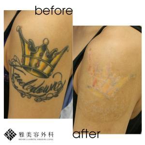 ピコレーザーによるタトゥー除去、症例91<大阪雅美容外科>