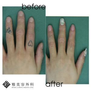 ピコレーザーによるタトゥー除去、症例93<大阪雅美容外科>