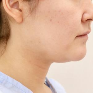 顎プロテーゼは本当に必要か?