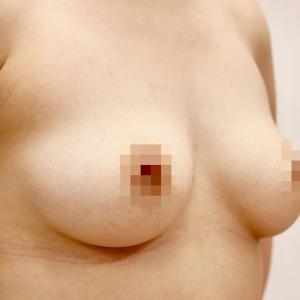 脂肪による豊胸術・3ヶ月